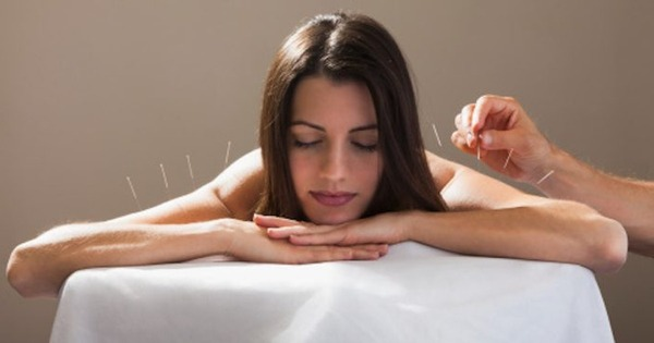 woman-acupuncture-session-relaxed 2